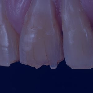 dental tooth wear courses