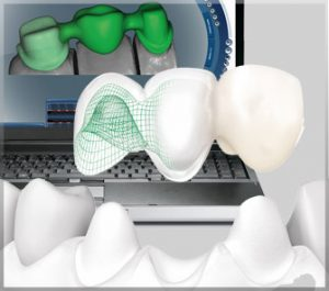 restore dental imlants course