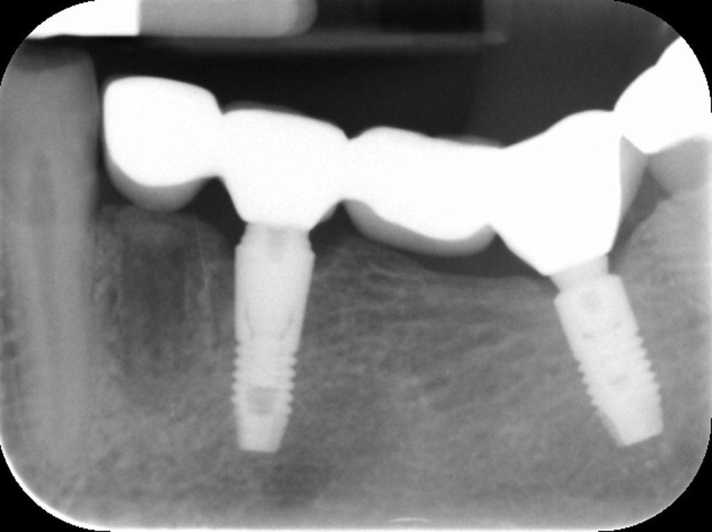 Prosthodontic Therapy