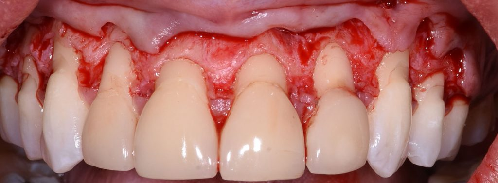Periodontal Surgery flap 2