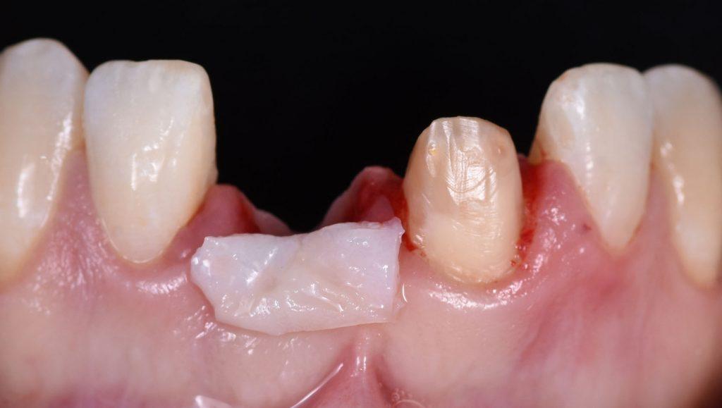 Soft Tissue Around Dental Implants Front implant graft 1