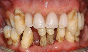 all teeth missing fixed teeth case 1 pre op