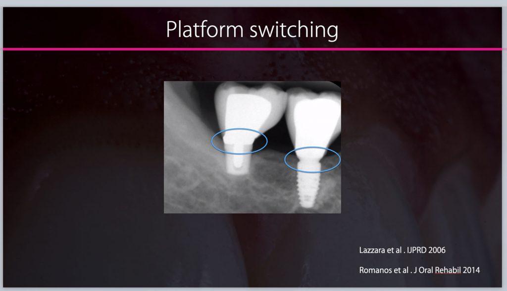 implant prosthdontics 2020-04-30 at 16.33.15_1