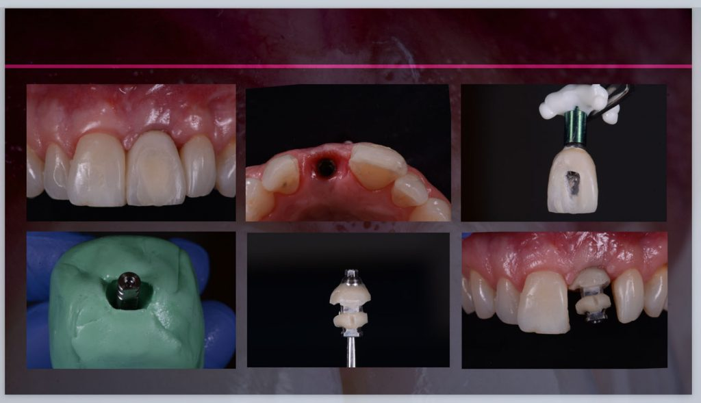 implant prosthdontics 2020-04-30 at 16.34.21_1