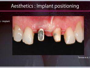 implant prosthdontics 2020-04-30 at 16.35.32_1