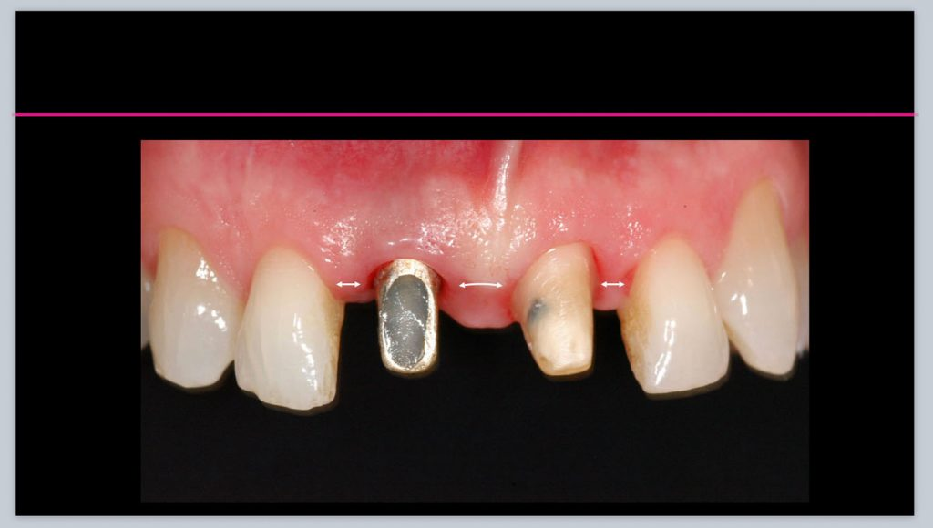 implant prosthdontics 2020-04-30 at 16.42.42