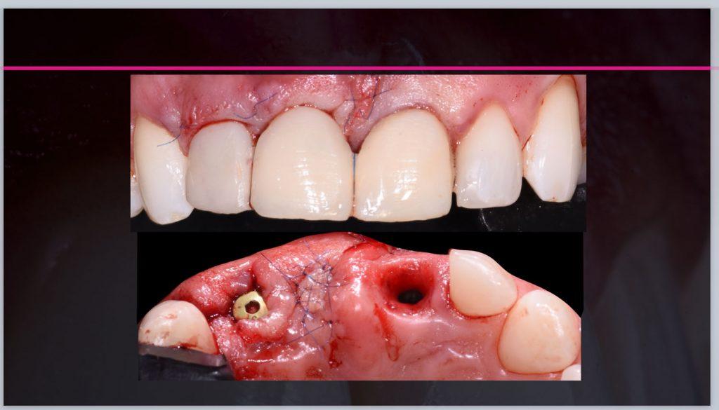 soft tissue surgery 2020-04-30 at 16.33.54