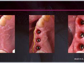 soft tissue surgery 2020-04-30 at 16.34.06