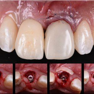 immediate-loading-dental-implant-course_03