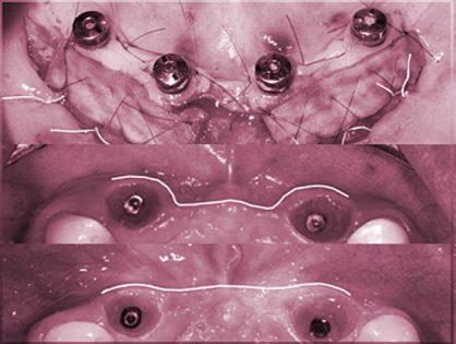 ADVANCED – Soft Tissue Around Dental Implants