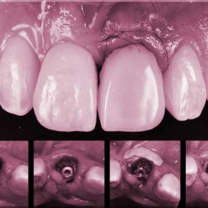 COL immediate-loading-dental-implant-course_03