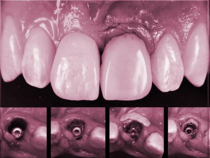 Immediate Loading & Temporisation of the Single Tooth Implant