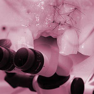 COL soft tissue around dental implants